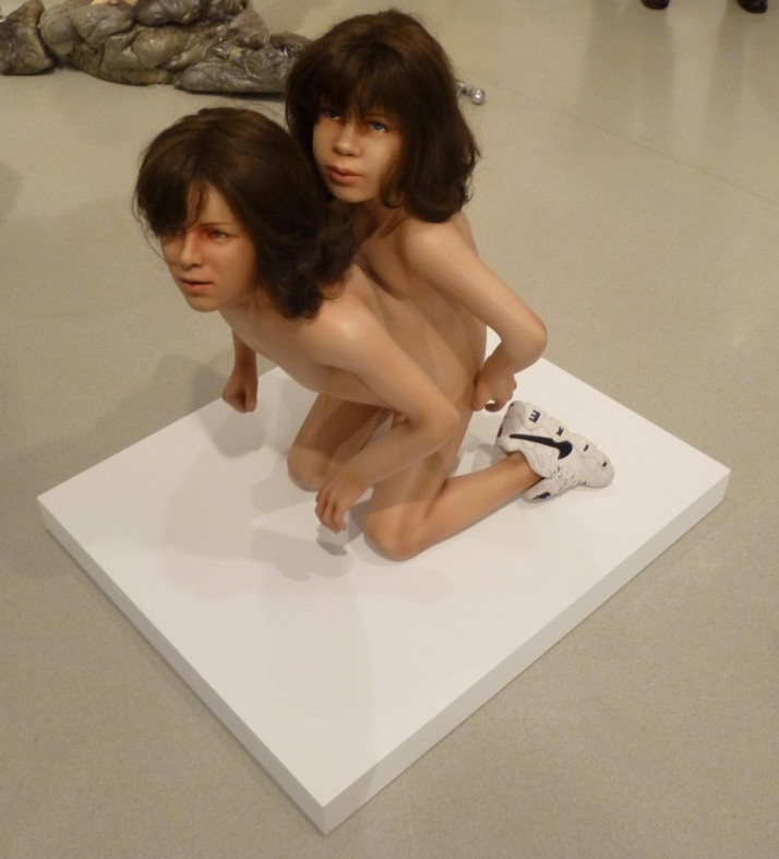 Nude Conjoined Twins 11